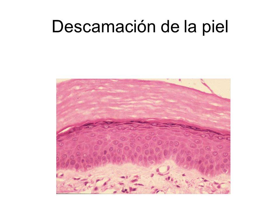 Descamación de la piel