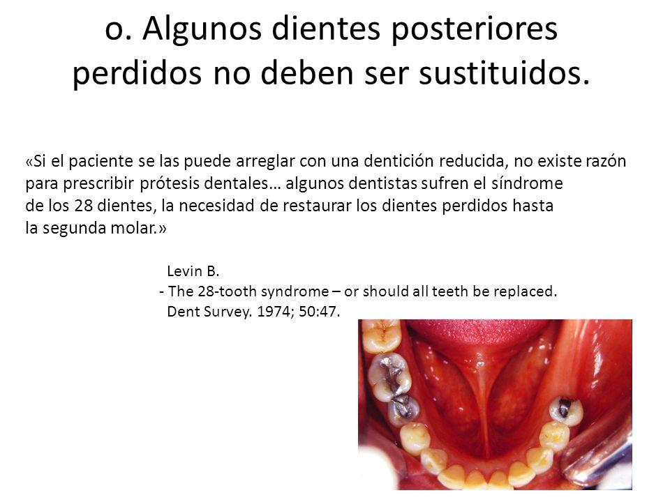 o. Algunos dientes posteriores perdidos no deben ser sustituidos.