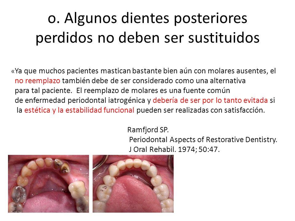 o. Algunos dientes posteriores perdidos no deben ser sustituidos