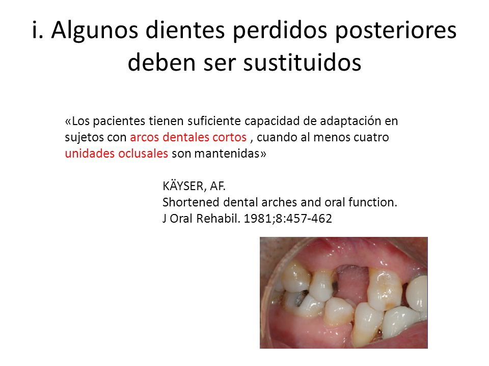 i. Algunos dientes perdidos posteriores deben ser sustituidos
