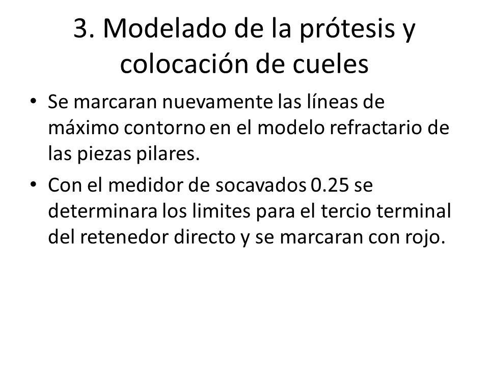 3. Modelado de la prótesis y colocación de cueles