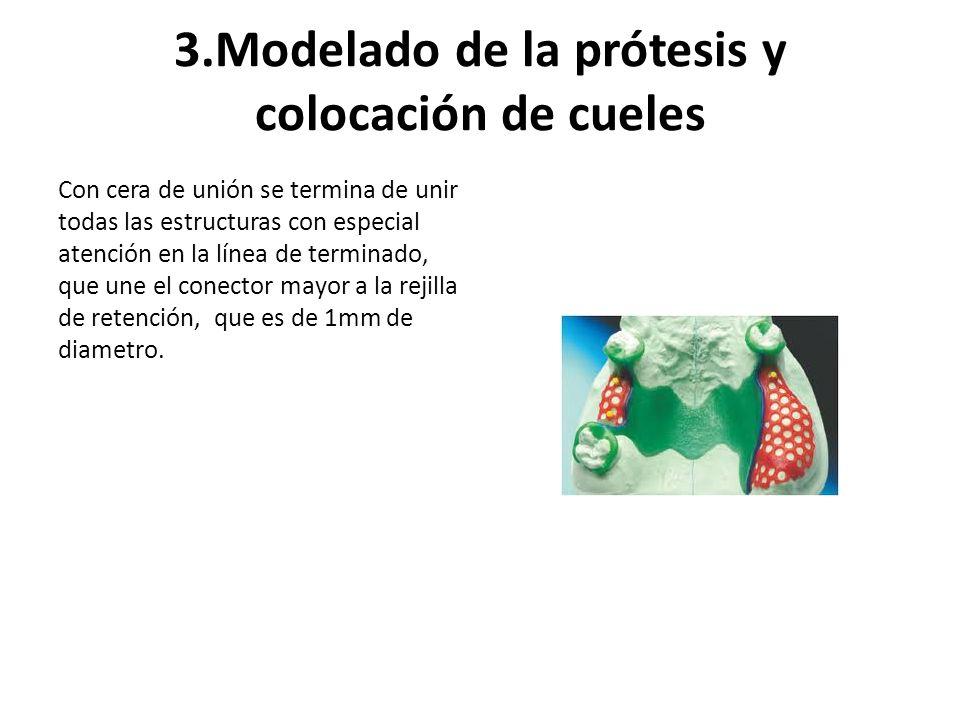 3.Modelado de la prótesis y colocación de cueles