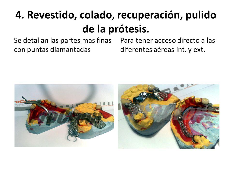 4. Revestido, colado, recuperación, pulido de la prótesis.