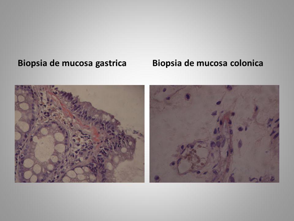 Biopsia de mucosa colonica