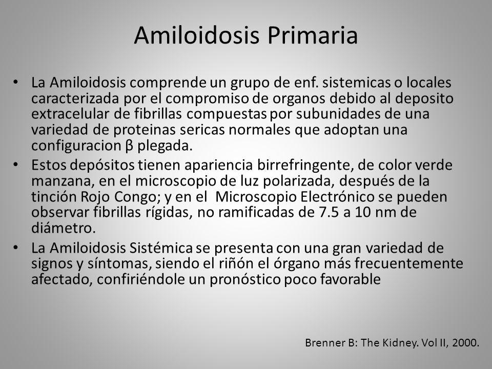 Amiloidosis Primaria