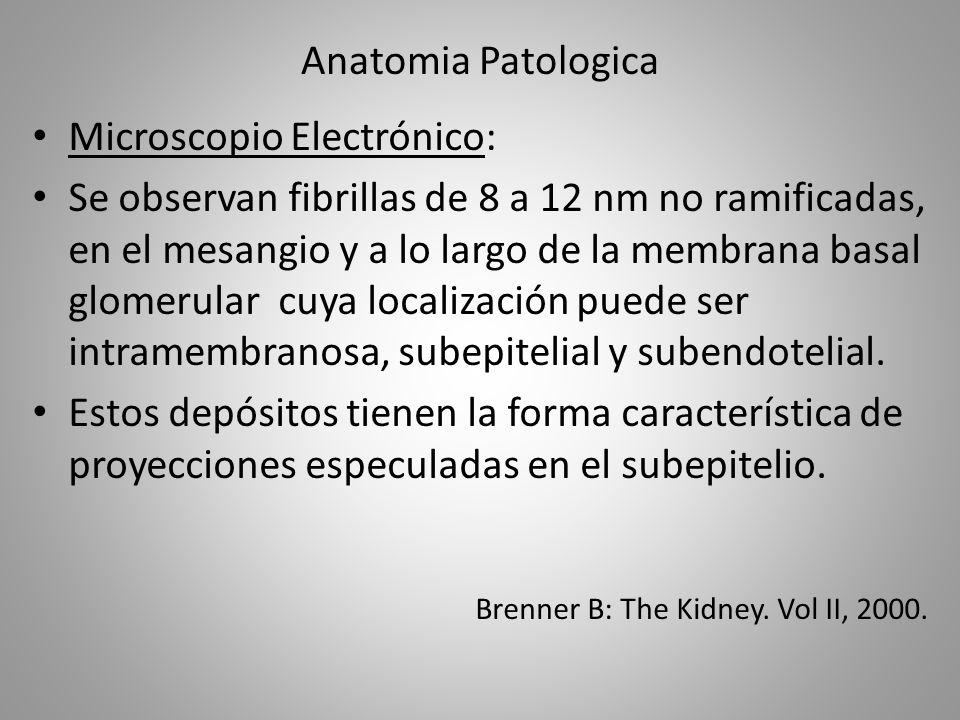 Microscopio Electrónico: