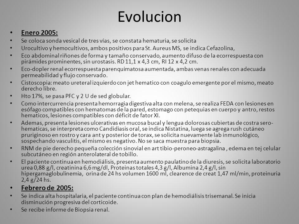 Evolucion Enero 2005: Febrero de 2005: