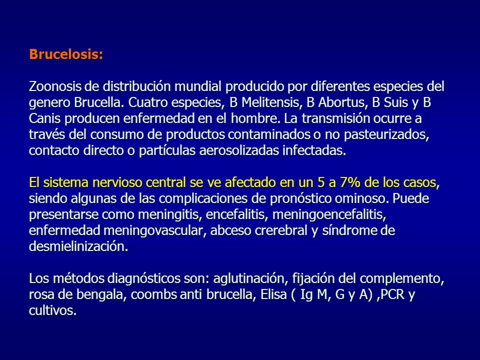 Brucelosis: Zoonosis de distribución mundial producido por diferentes especies del genero Brucella.