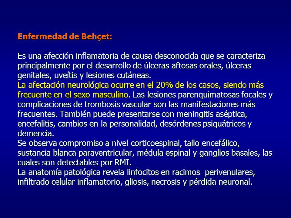 Enfermedad de Behçet: Es una afección inflamatoria de causa desconocida que se caracteriza principalmente por el desarrollo de úlceras aftosas orales, úlceras genitales, uveítis y lesiones cutáneas.