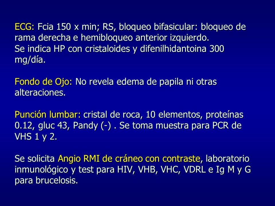 ECG: Fcia 150 x min; RS, bloqueo bifasicular: bloqueo de rama derecha e hemibloqueo anterior izquierdo.