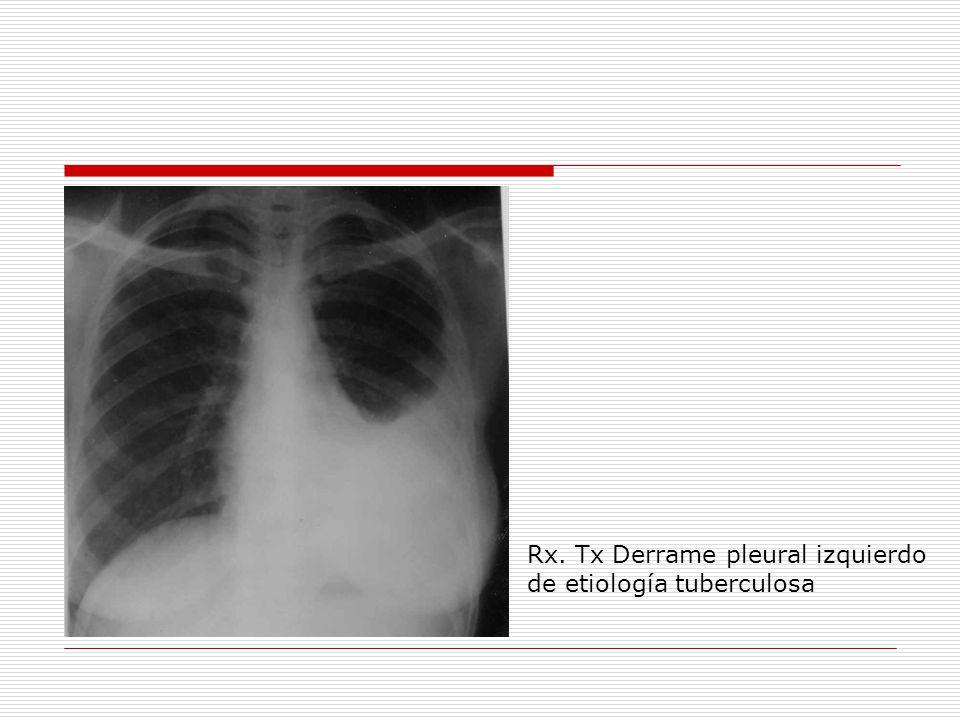 Rx. Tx Derrame pleural izquierdo