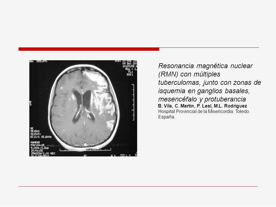 Resonancia magnética nuclear (RMN) con múltiples tuberculomas, junto con zonas de isquemia en ganglios basales, mesencéfalo y protuberancia