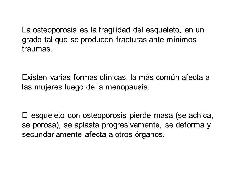 La osteoporosis es la fragilidad del esqueleto, en un grado tal que se producen fracturas ante mínimos traumas.