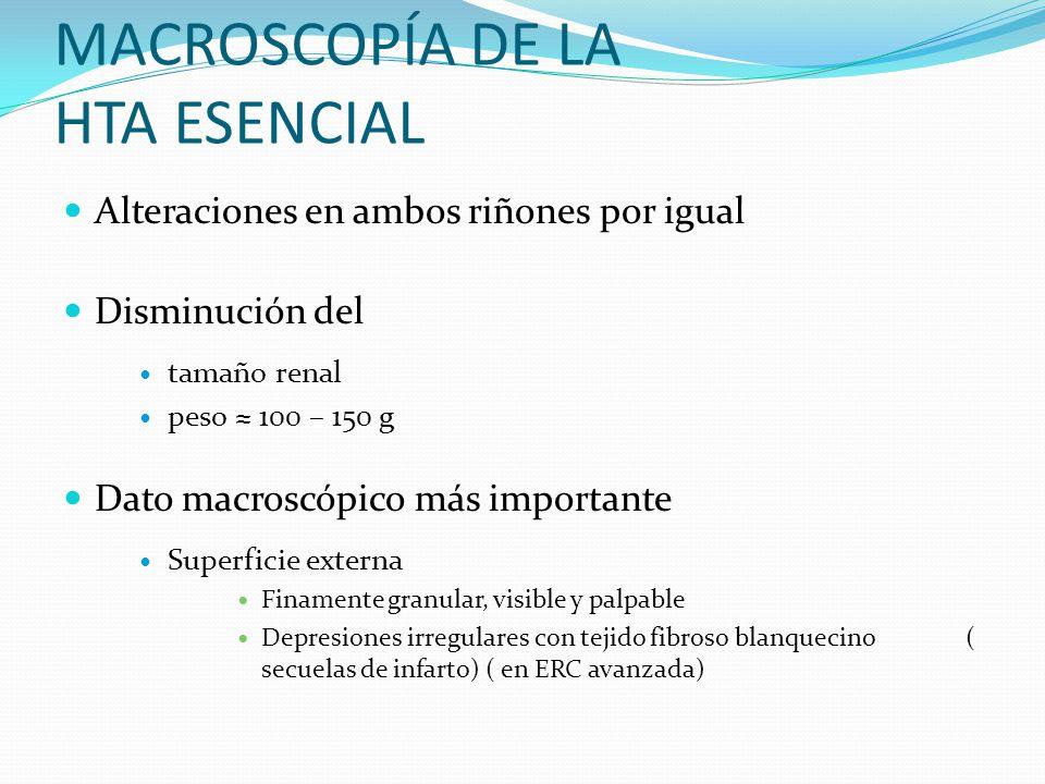 MACROSCOPÍA DE LA HTA ESENCIAL