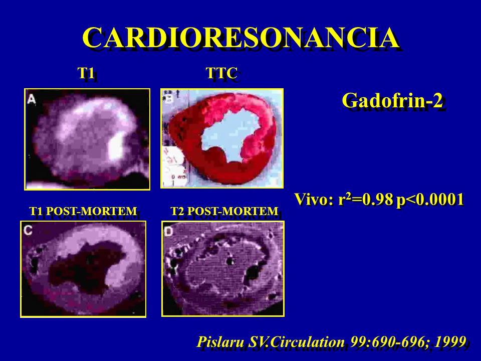 CARDIORESONANCIA Gadofrin-2 Vivo: r2=0.98 p<0.0001 T1 TTC