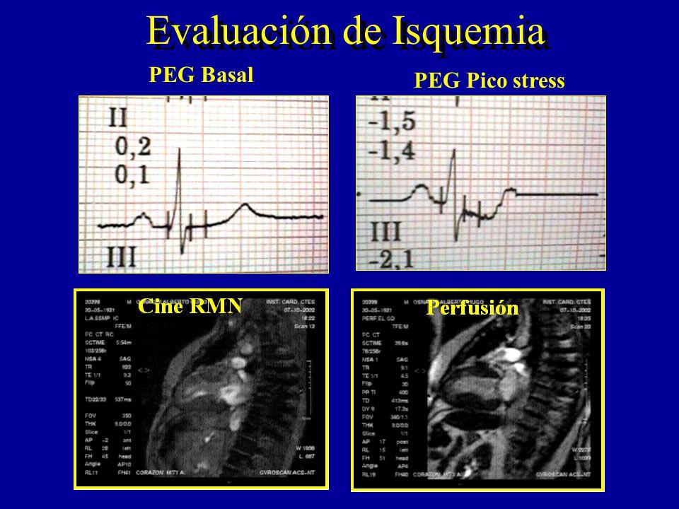 Evaluación de Isquemia