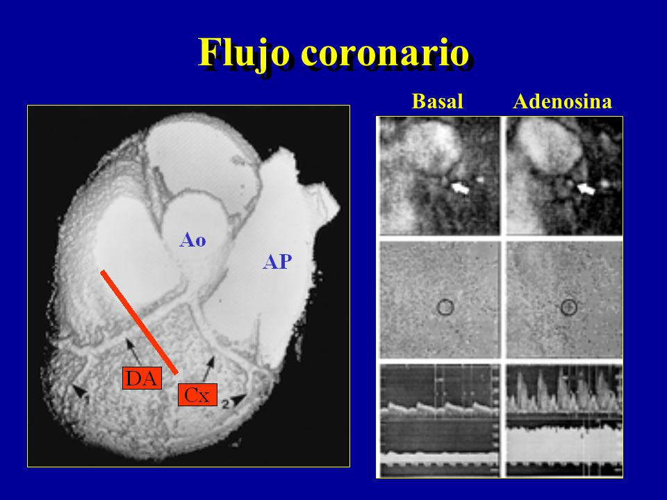 Flujo coronario Basal Adenosina