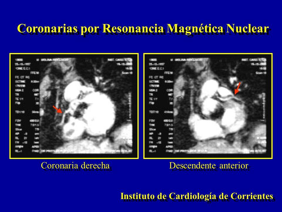 Coronarias por Resonancia Magnética Nuclear