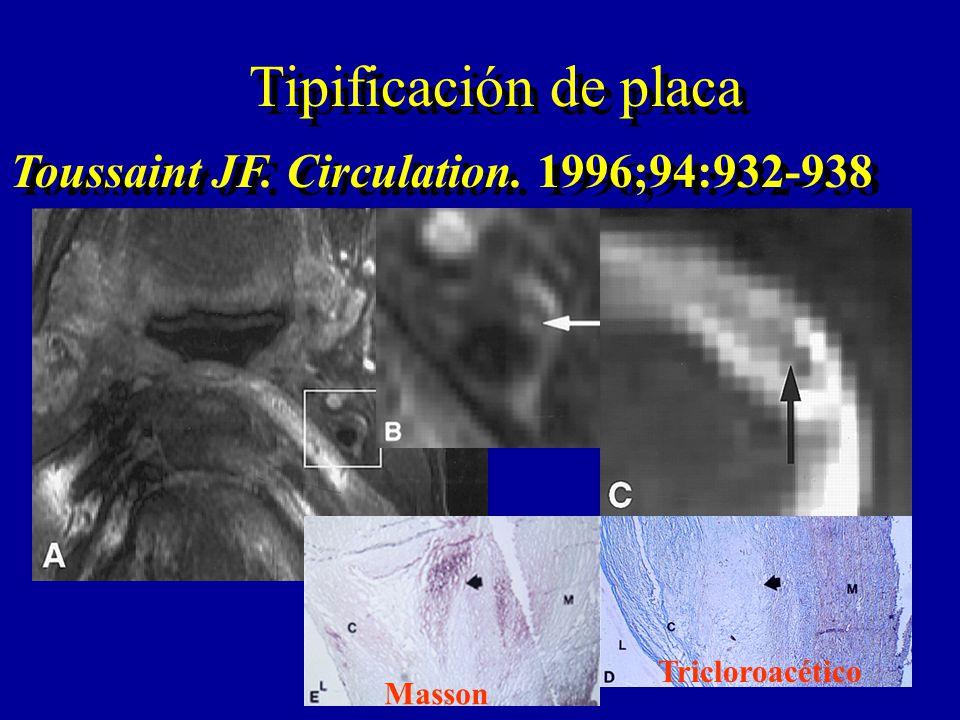 Tipificación de placa Toussaint JF. Circulation. 1996;94:932-938