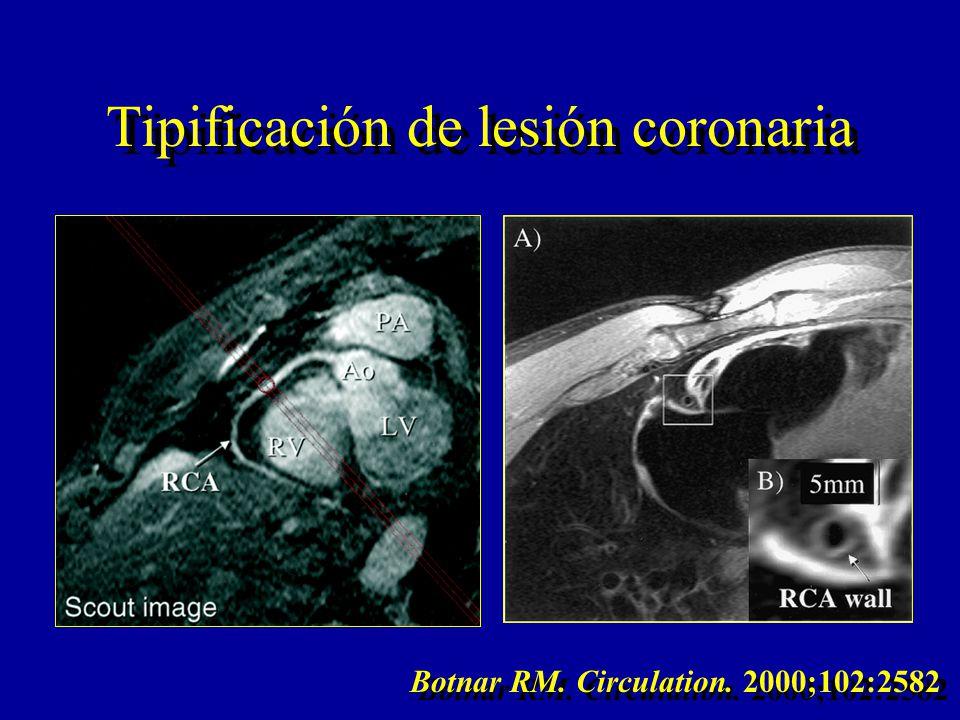 Tipificación de lesión coronaria