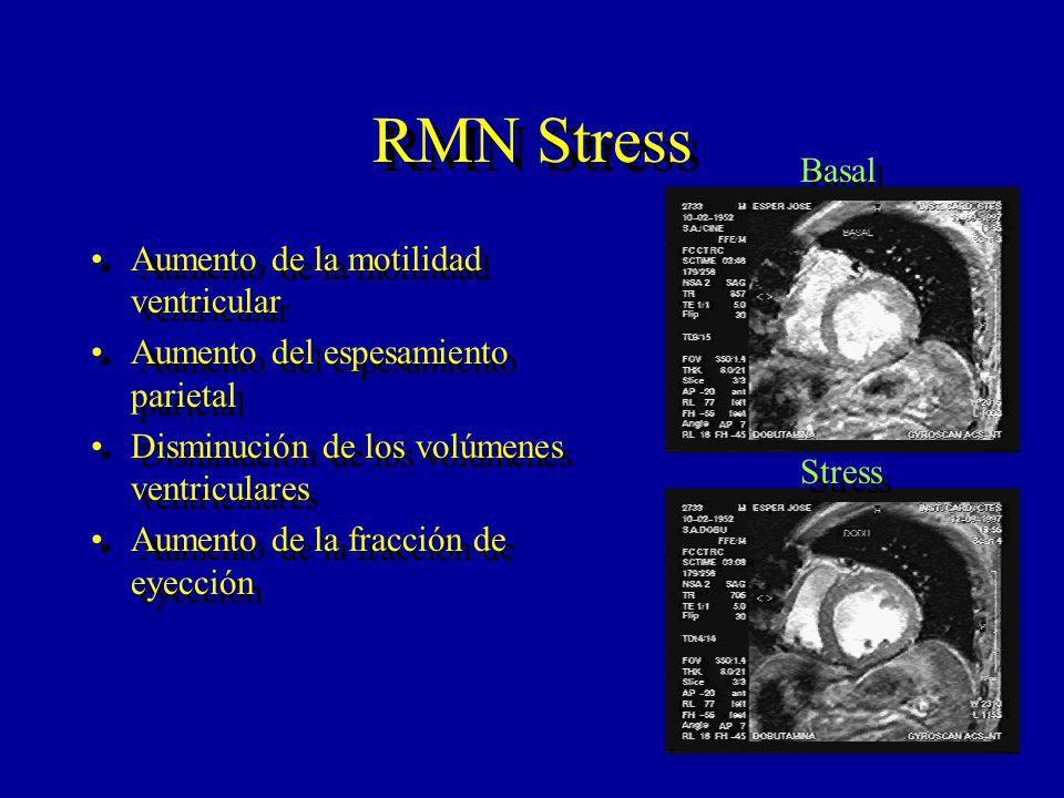 RMN Stress Basal Aumento de la motilidad ventricular