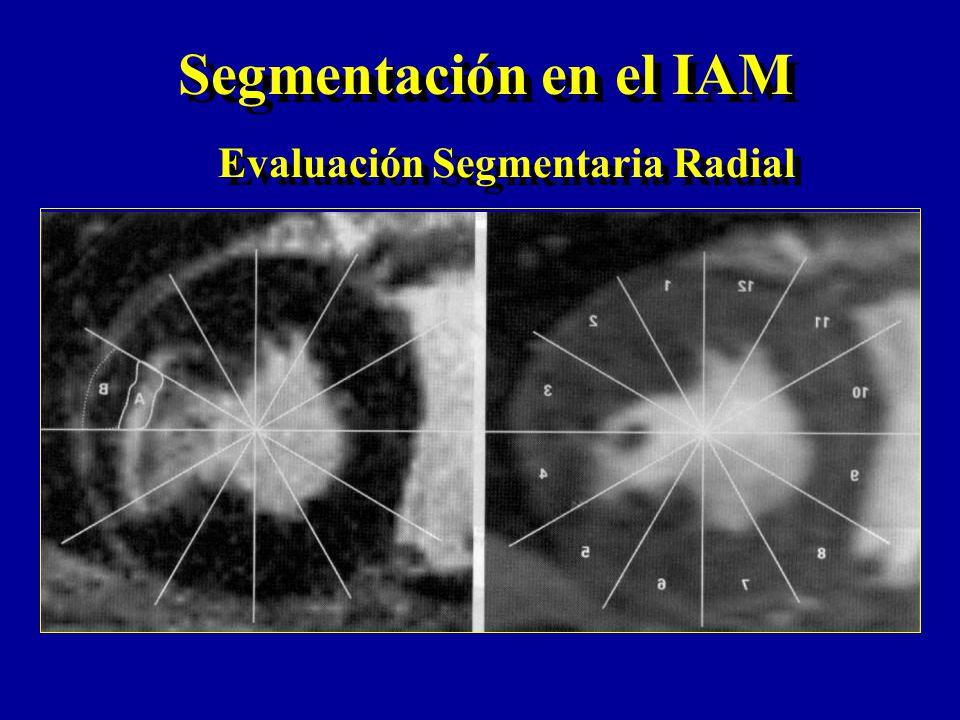 Segmentación en el IAM Evaluación Segmentaria Radial