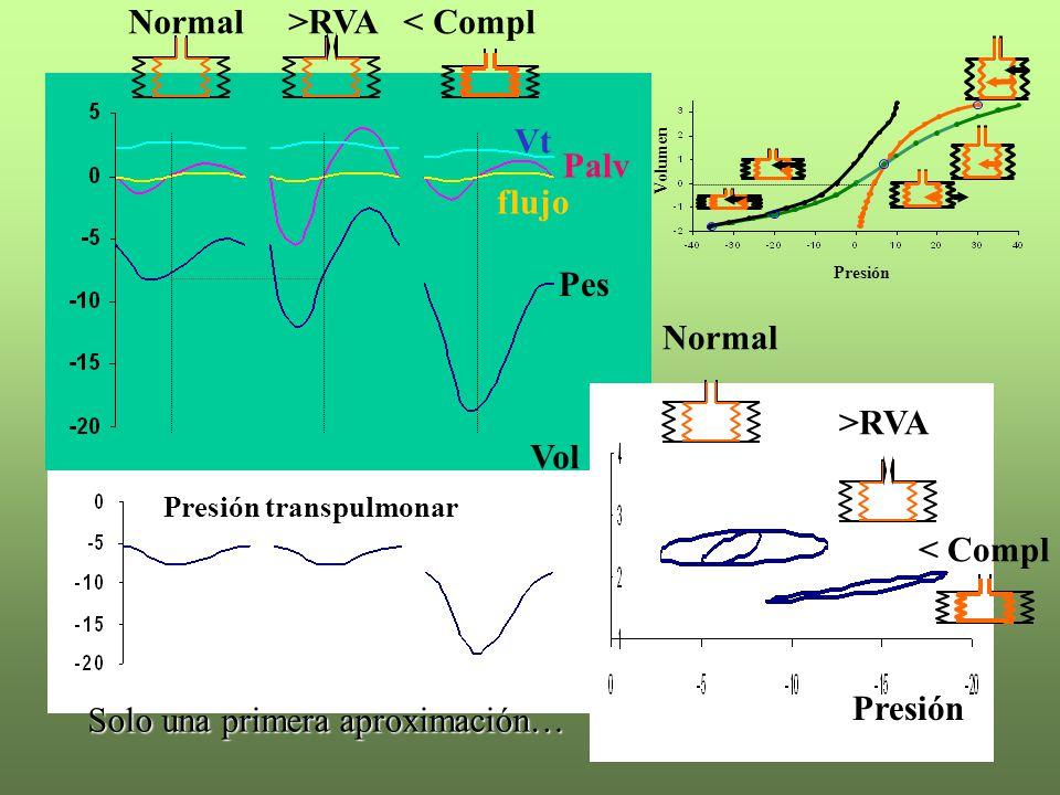 Presión transpulmonar