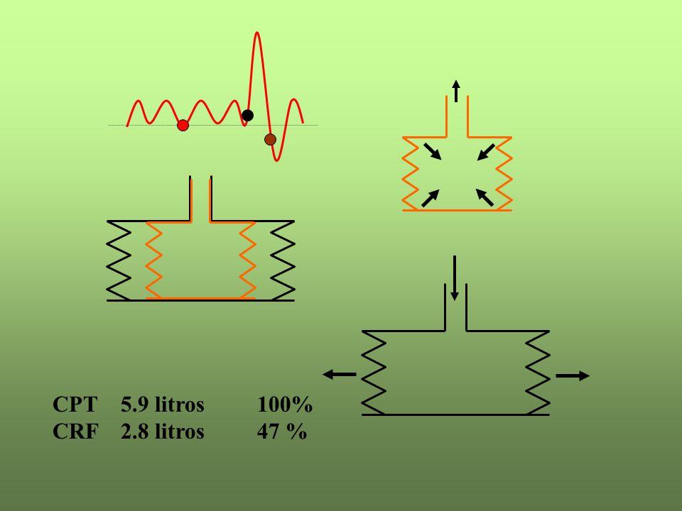 CPT 5.9 litros 100% CRF 2.8 litros 47 %