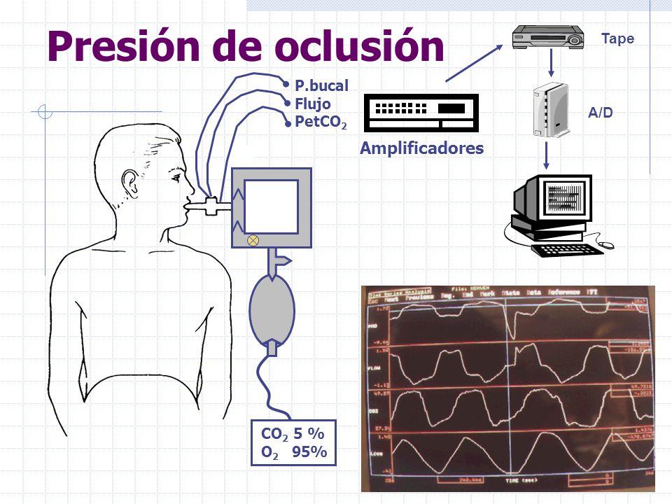 Presión de oclusión < Amplificadores Tape P.bucal Flujo PetCO2 A/D