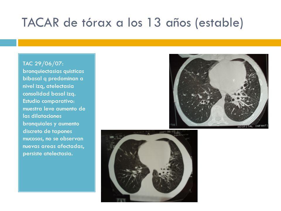 TACAR de tórax a los 13 años (estable)