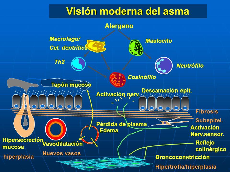 Visión moderna del asma