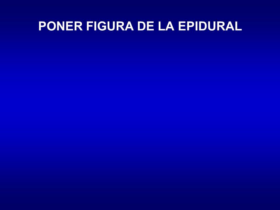 PONER FIGURA DE LA EPIDURAL