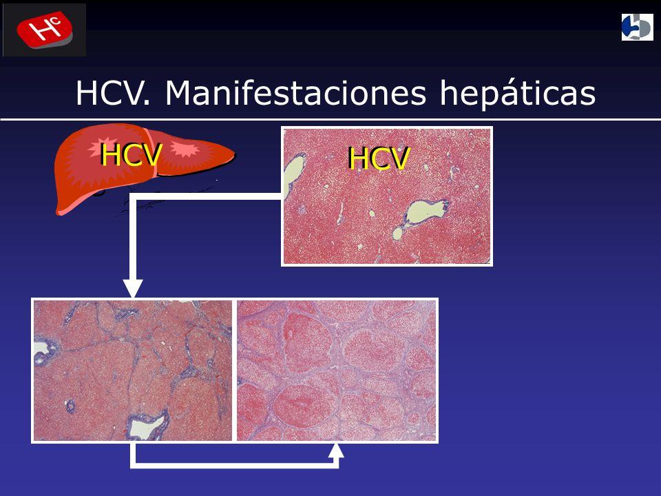 HCV. Manifestaciones hepáticas
