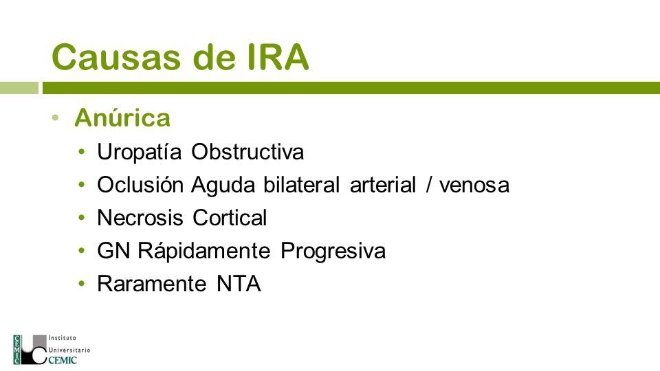 Causas de IRA Anúrica Uropatía Obstructiva