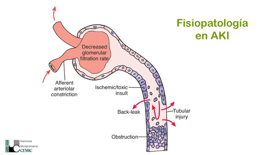 Fisiopatología en AKI