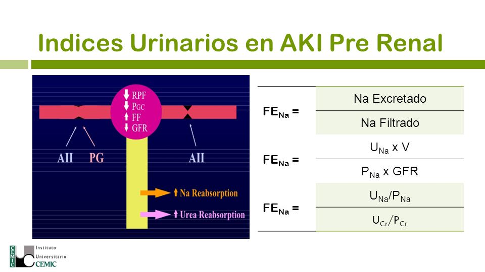 Indices Urinarios en AKI Pre Renal