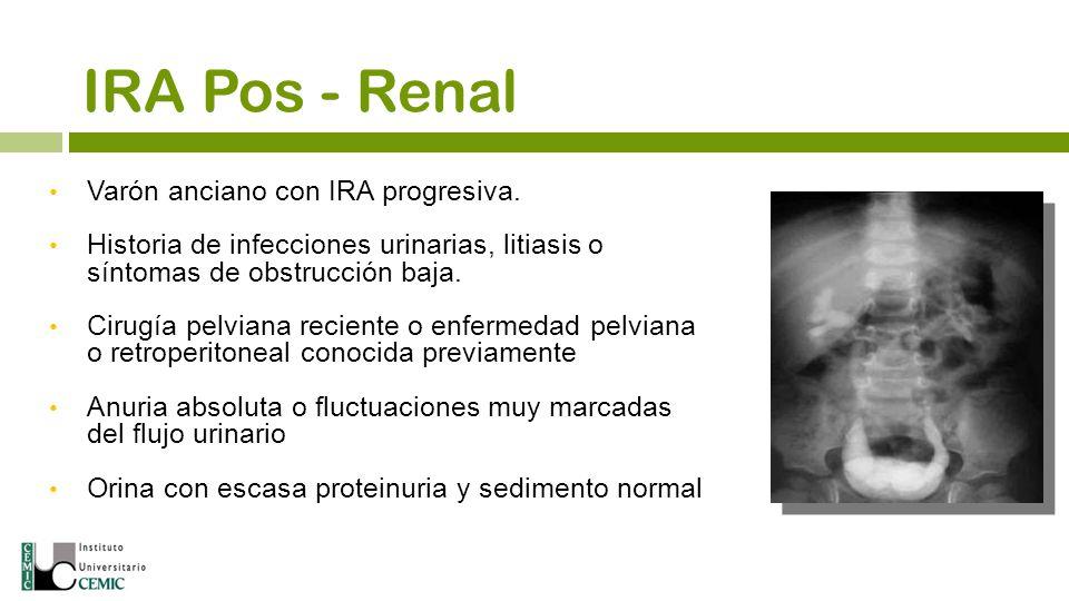 IRA Pos - Renal Varón anciano con IRA progresiva.