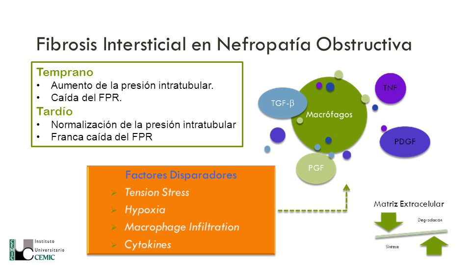 Fibrosis Intersticial en Nefropatía Obstructiva