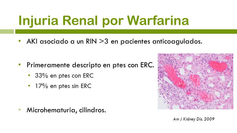 Injuria Renal por Warfarina