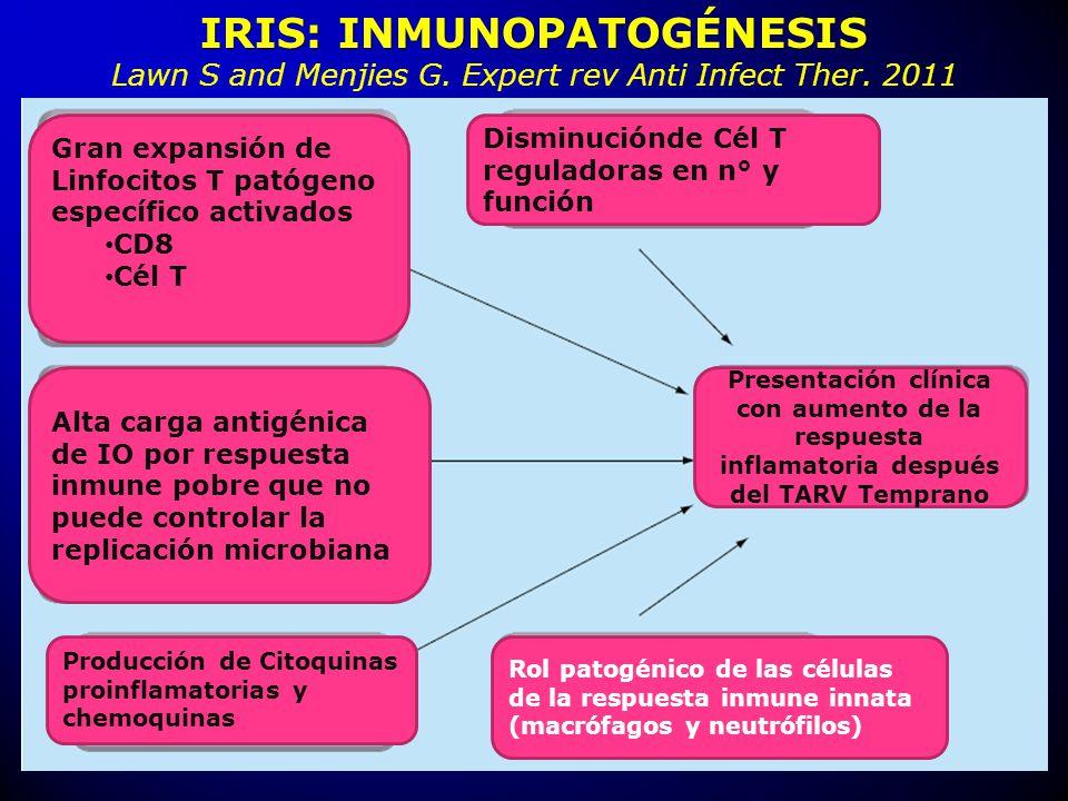 IRIS: INMUNOPATOGÉNESIS
