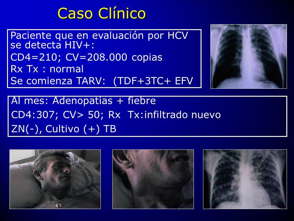 Caso Clínico Paciente que en evaluación por HCV se detecta HIV+: