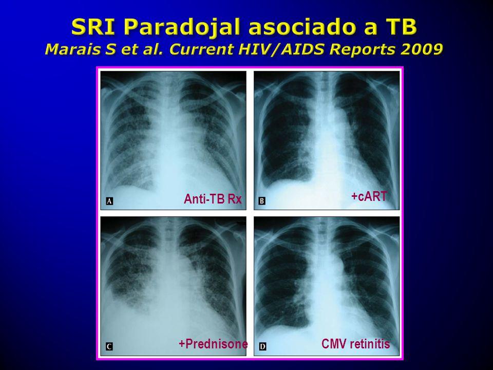 Anti-TB Rx +cART +Prednisone CMV retinitis