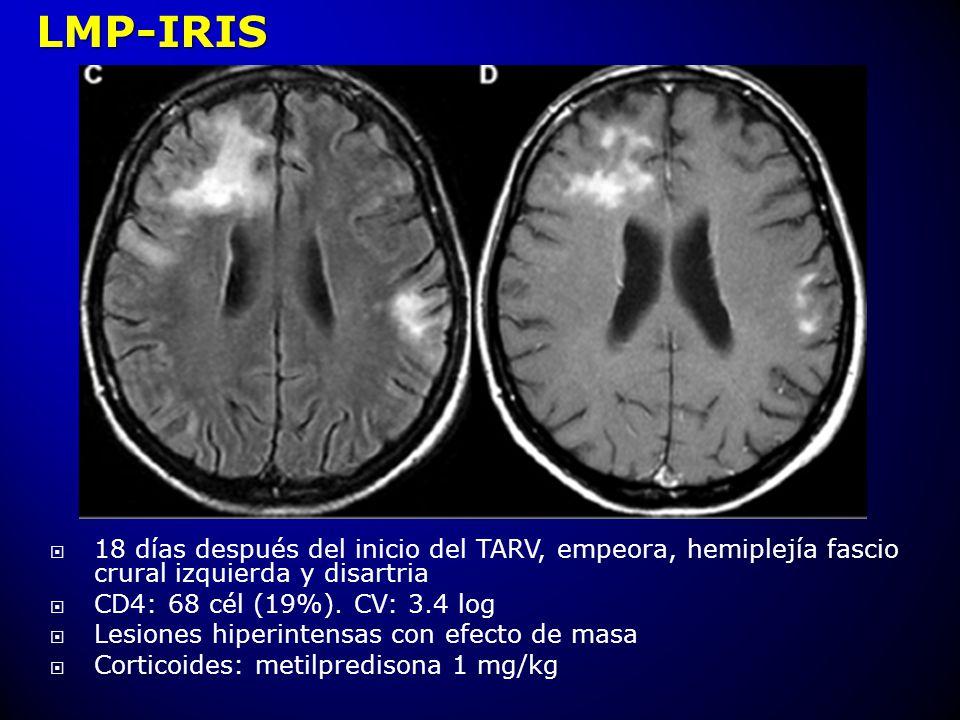 LMP-IRIS 18 días después del inicio del TARV, empeora, hemiplejía fascio crural izquierda y disartria.