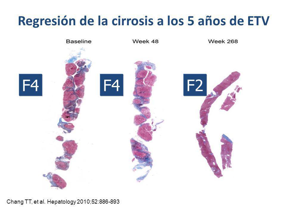 Regresión de la cirrosis a los 5 años de ETV