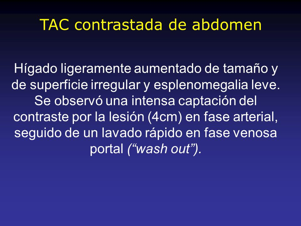 TAC contrastada de abdomen