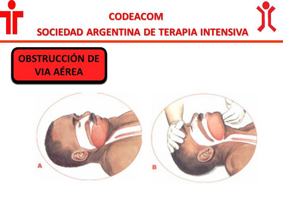 SOCIEDAD ARGENTINA DE TERAPIA INTENSIVA OBSTRUCCIÓN DE VIA AÉREA