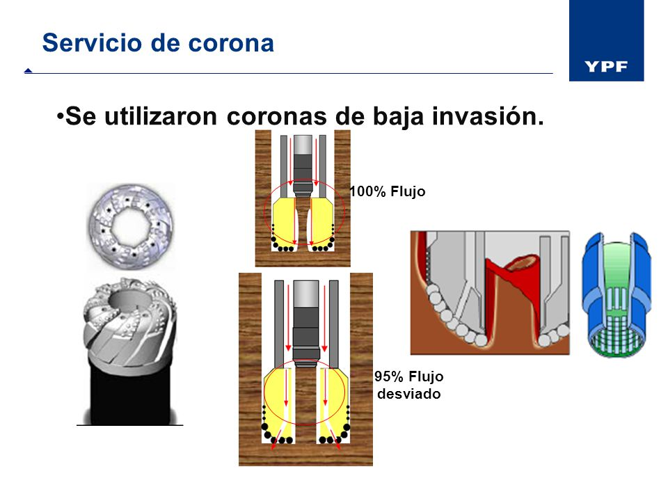 Se utilizaron coronas de baja invasión.