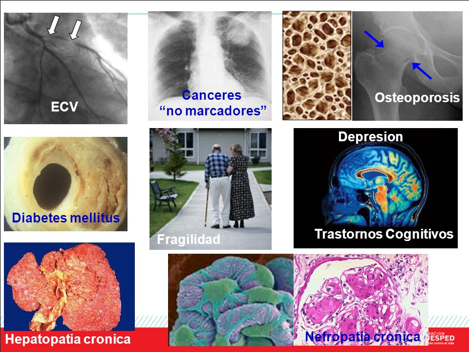 Canceres no marcadores Osteoporosis. ECV. Depresion. Diabetes mellitus. Trastornos Cognitivos.