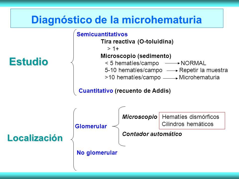 Diagnóstico de la microhematuria