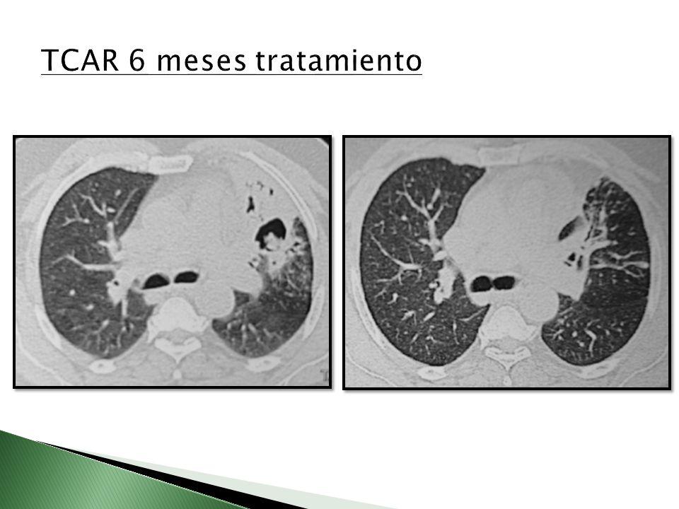 TCAR 6 meses tratamiento